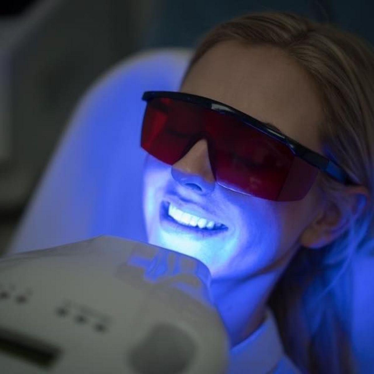 Blanchiment dentaire Professionnel à Hillion (22) Par Christelle - Estheca
