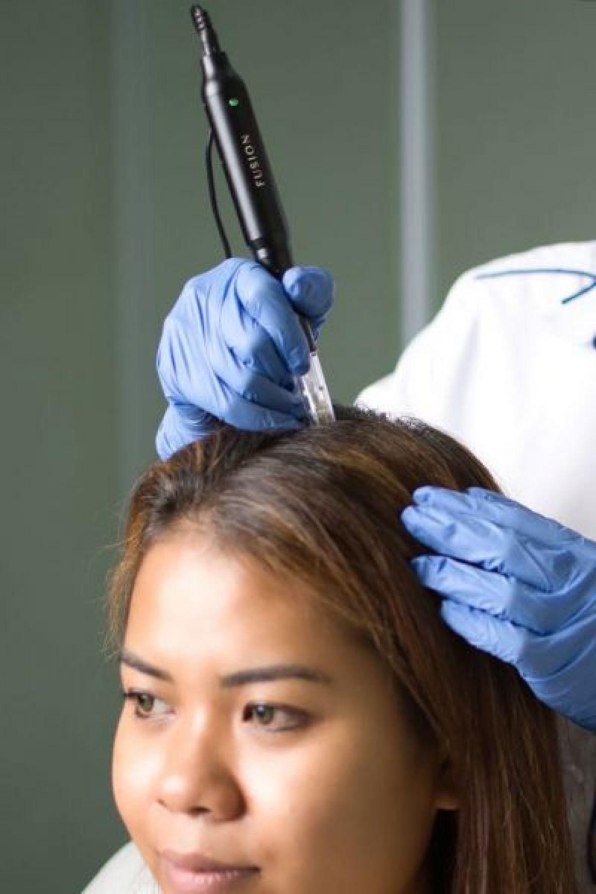 Hairneedling anti chute de cheveux à Montgeron (91) Par Morgane - Estheca