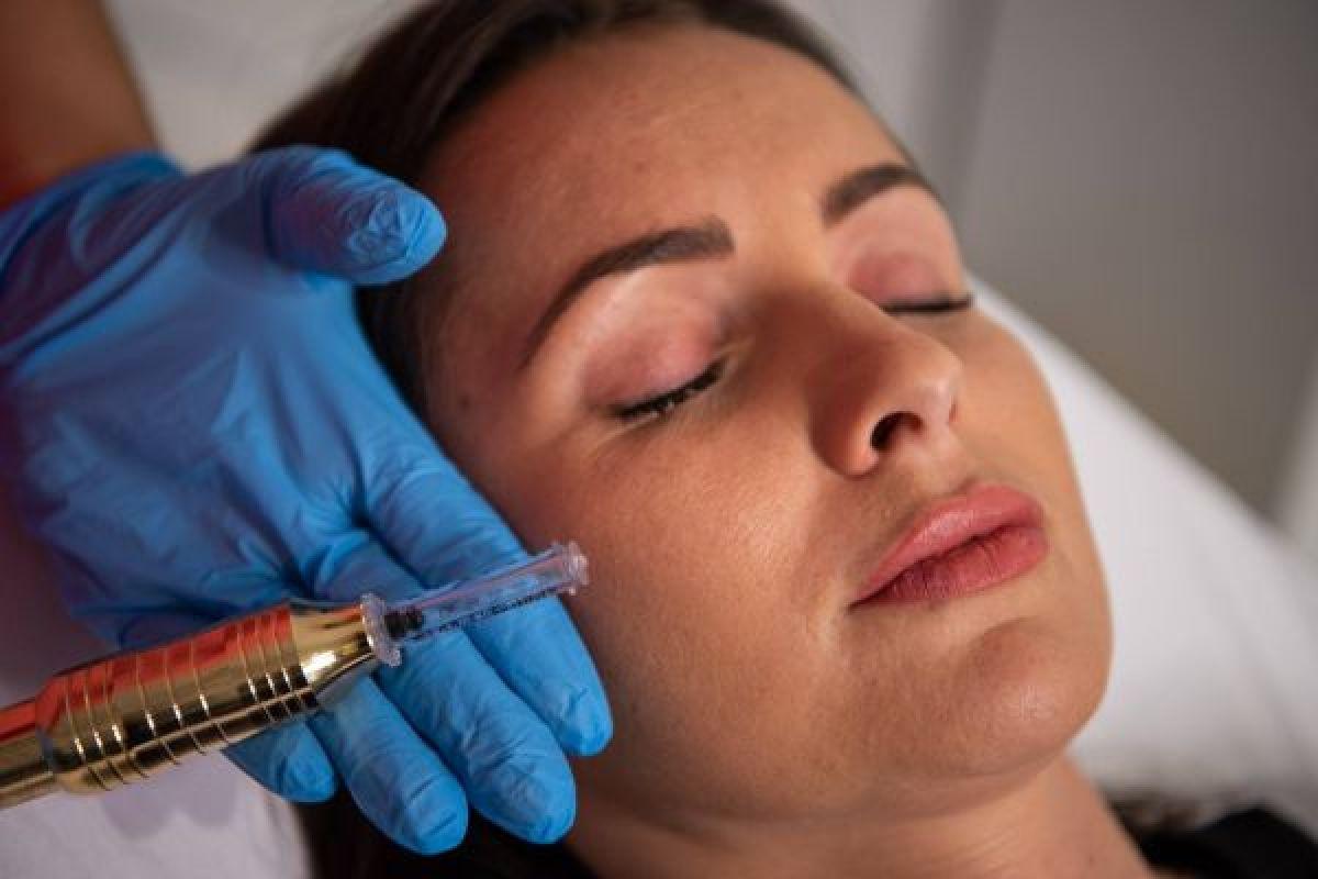 Augmentation lèvres Hyaluron pen à Chancelade (24) Par Mélanie - Estheca