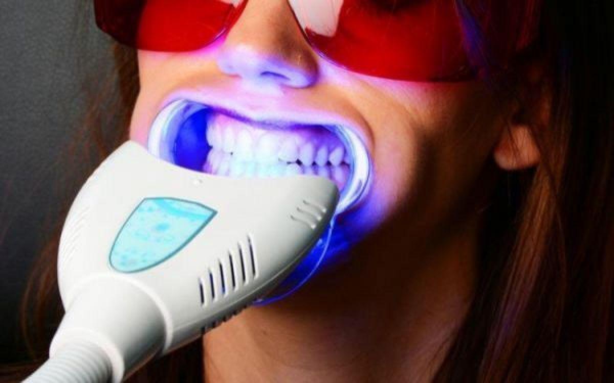 Blanchiment dentaire à Péronnas (01) Par Axelle - Estheca