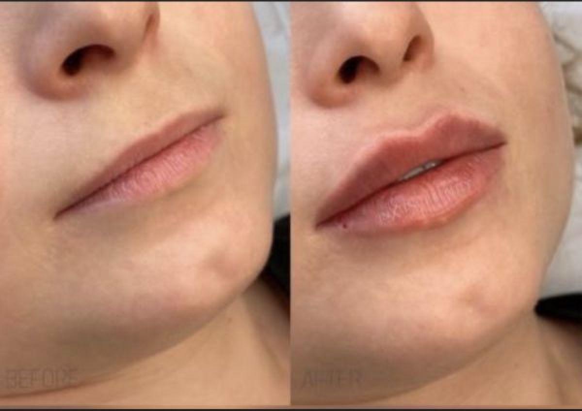 Injections acide hyaluronique (russian lips, sillons, jawline...) à Sens (89) Par Aurélie - Estheca