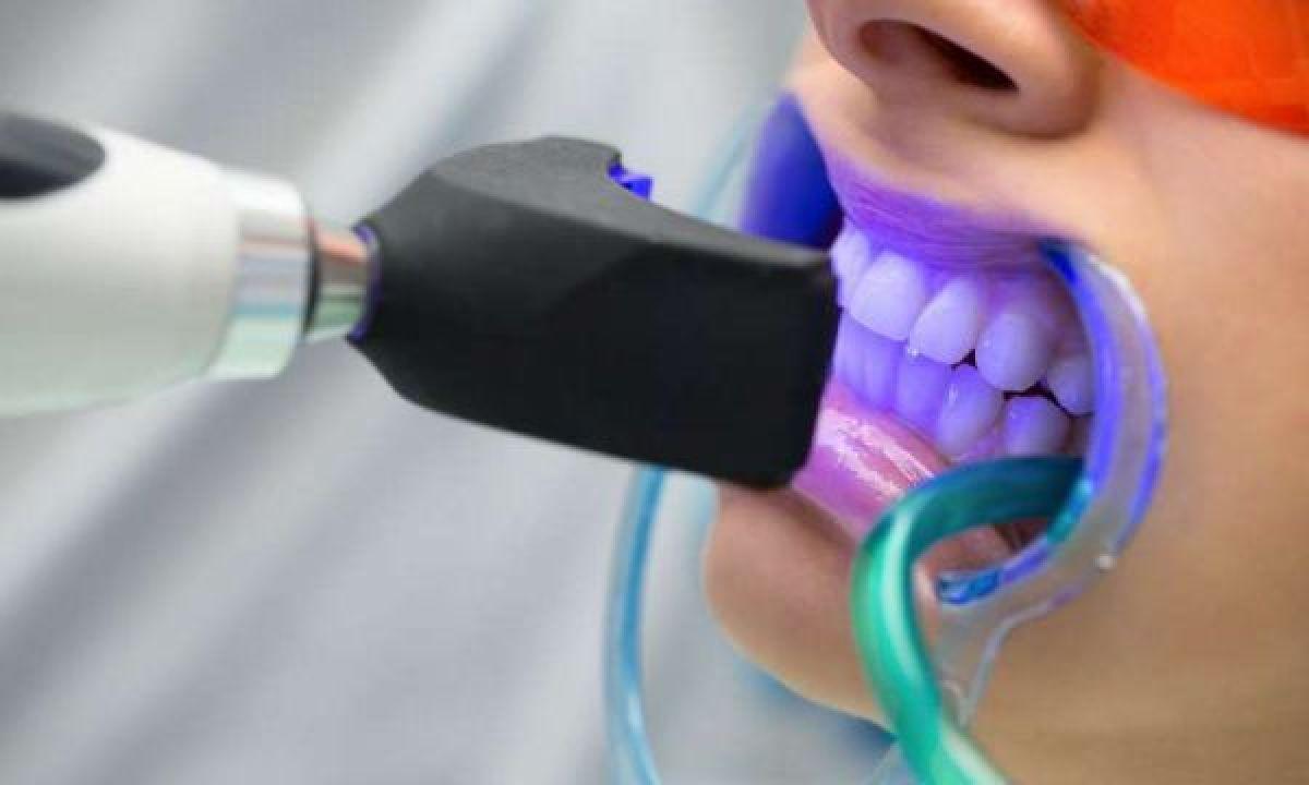 Blanchiment dentaire Professionnel à Courthézon (84) Par Dounia - Estheca