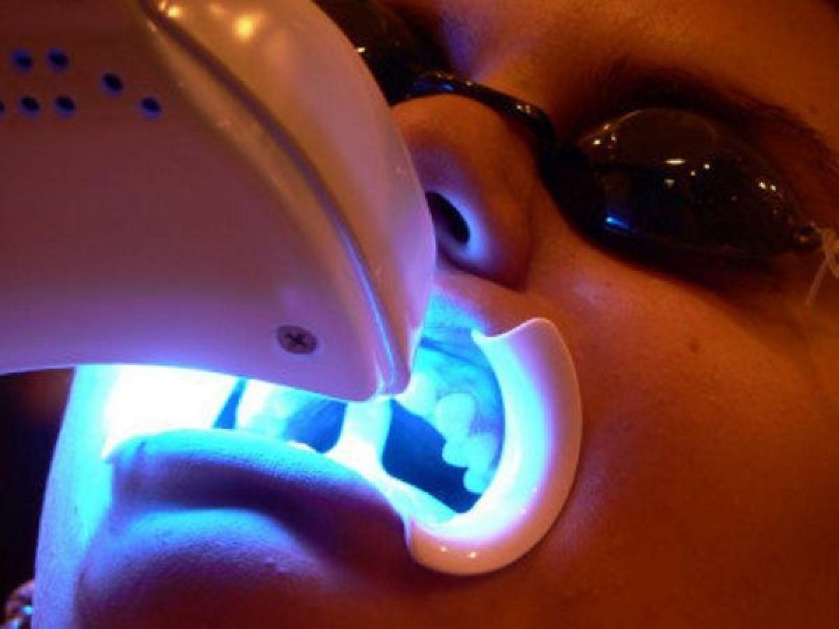 Blanchiment dentaire Professionnel à Talange (57) Par Céline - Estheca