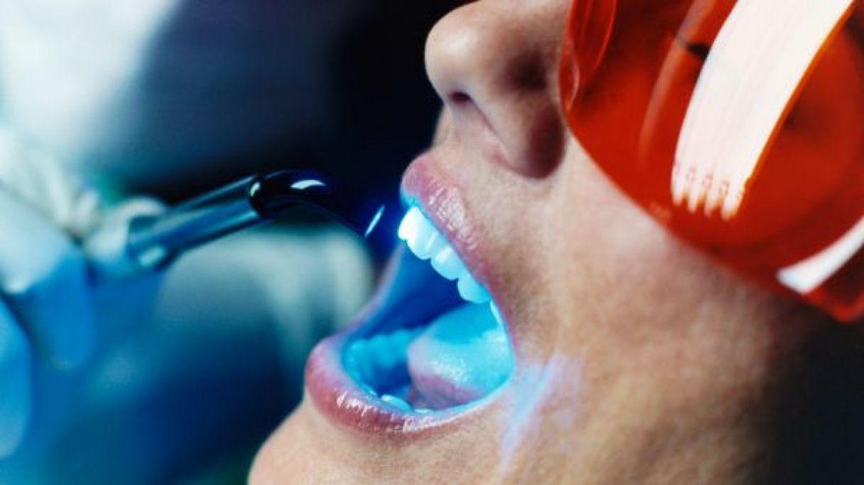 Blanchiment dentaire Pro à Marmagne (18) Par Elsa - Estheca