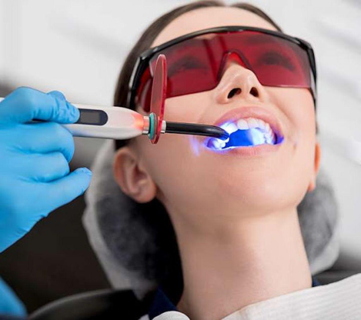 Blanchiment dentaire Pro à Saône (25) Par Estelle - Estheca