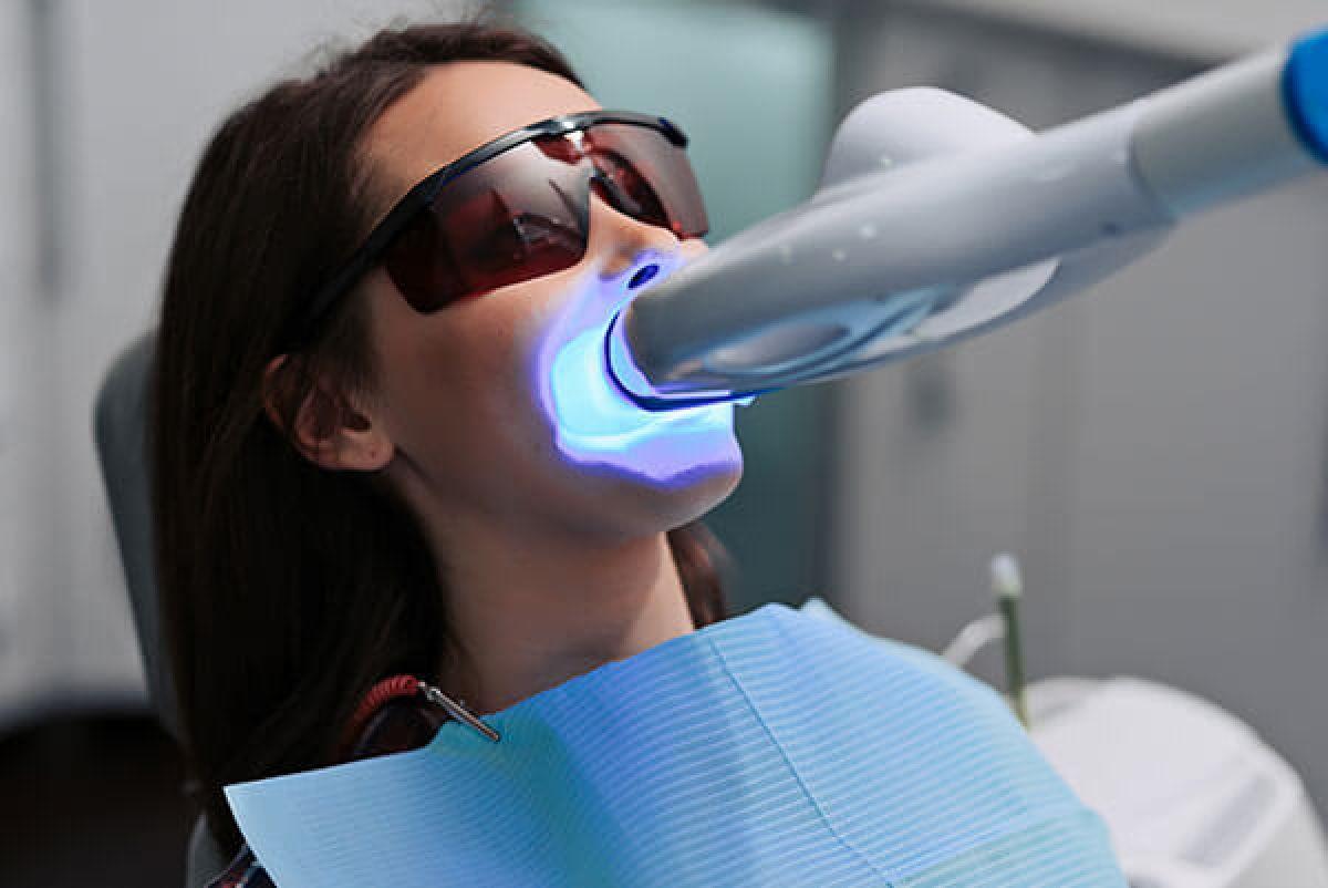 Blanchiment dentaire à Metz (57) Par Linda - Estheca