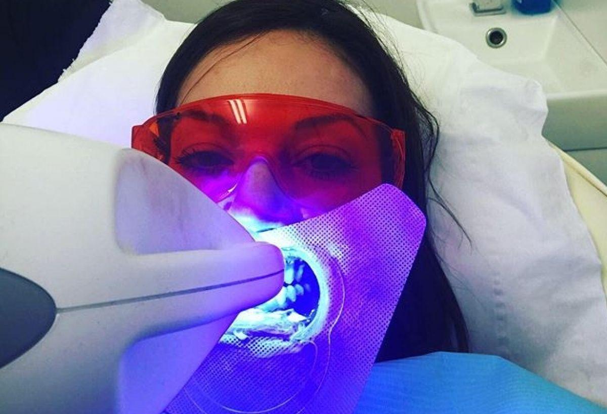 Blanchiment dentaire Professionnel à Champigny (89) Par Melinda - Estheca