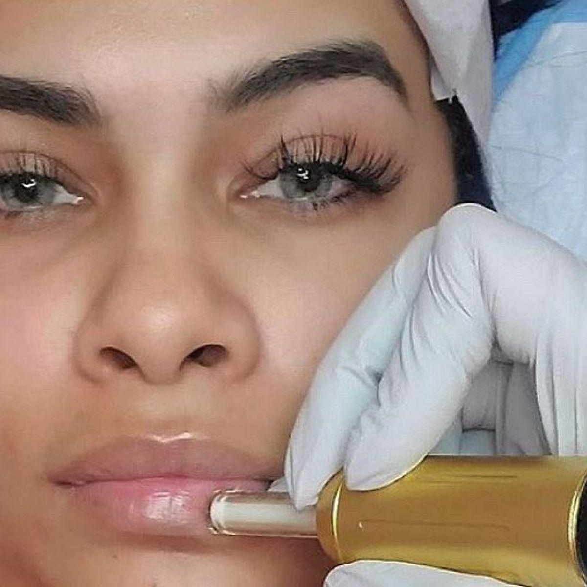 Augmentation lèvres Hyaluron pen à Challes-les-Eaux (73) Par Rachida - Estheca