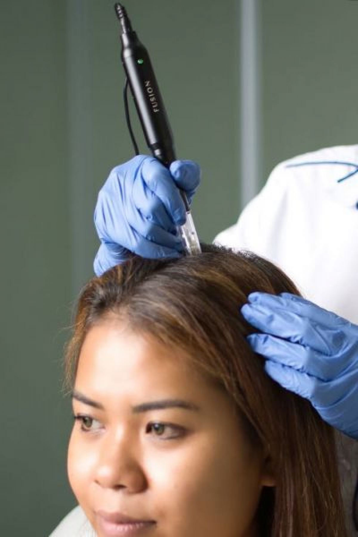 Hair needling à Orléans (45) Par Souad - Estheca