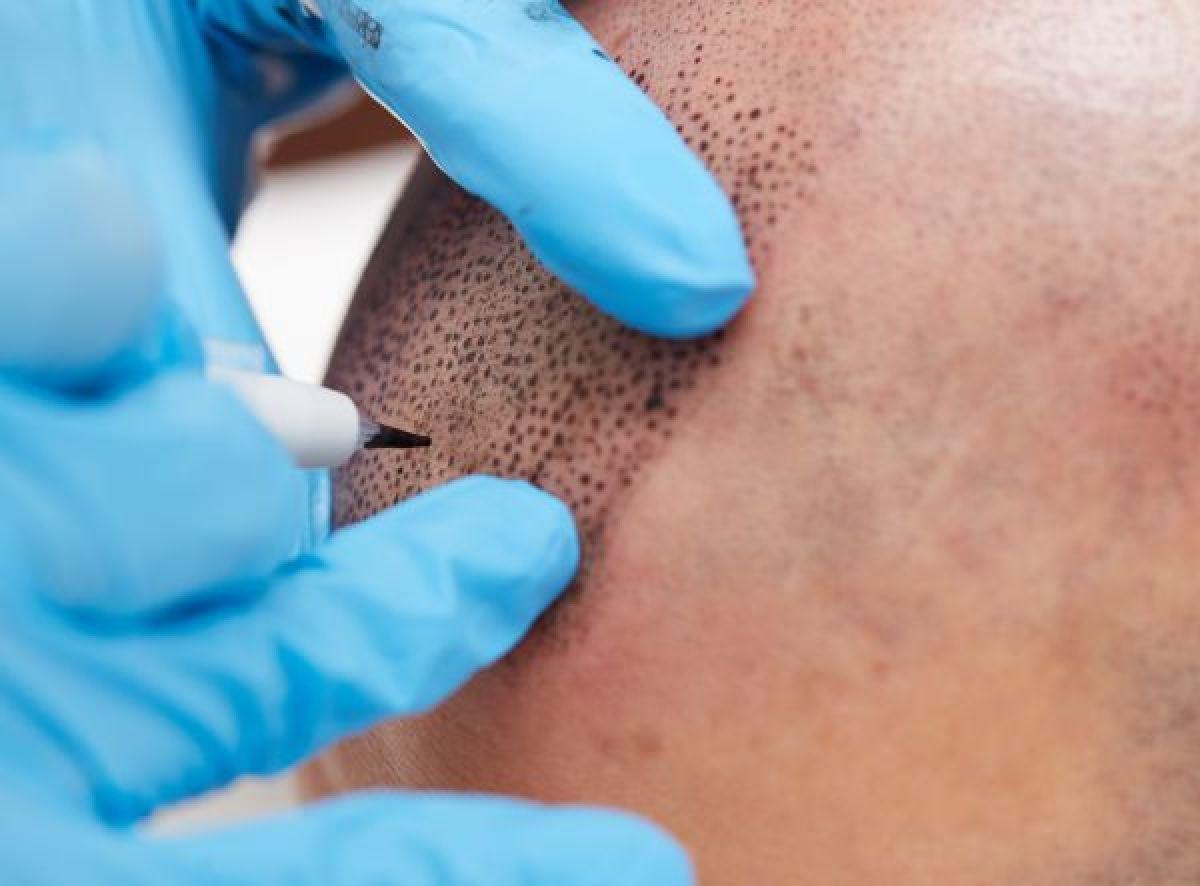 Tricopigmentation du cuir chevelu à Antibes (06) Par Rachelle - Estheca
