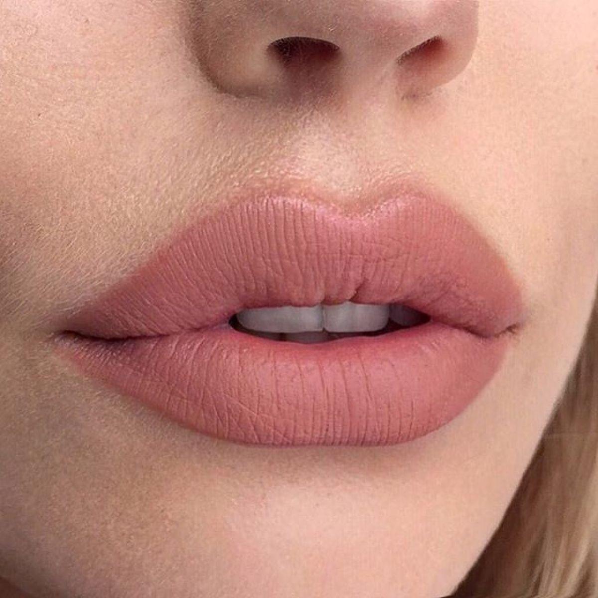 Injection acide Hyaluronique (lèvres) à Bourg-lès-Valence (26) Par Tina - Estheca