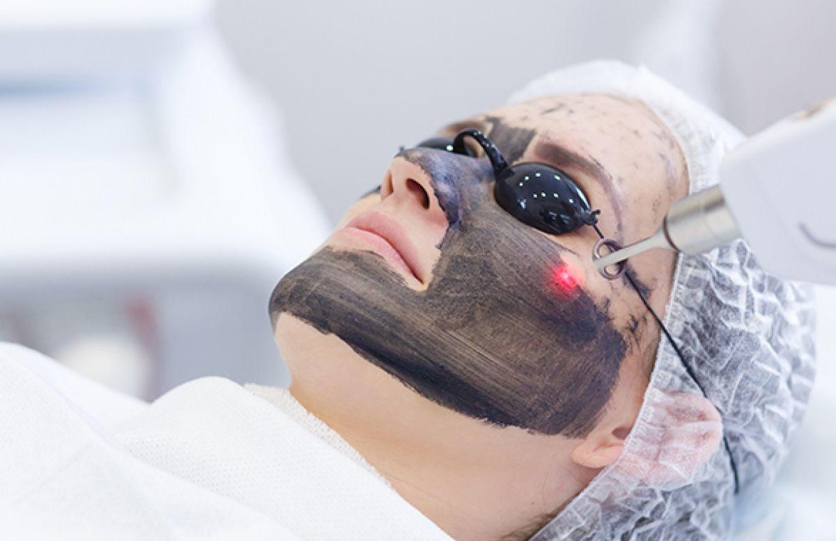 Carbone Laser Peel  à Dax (40) Par Sana - Estheca