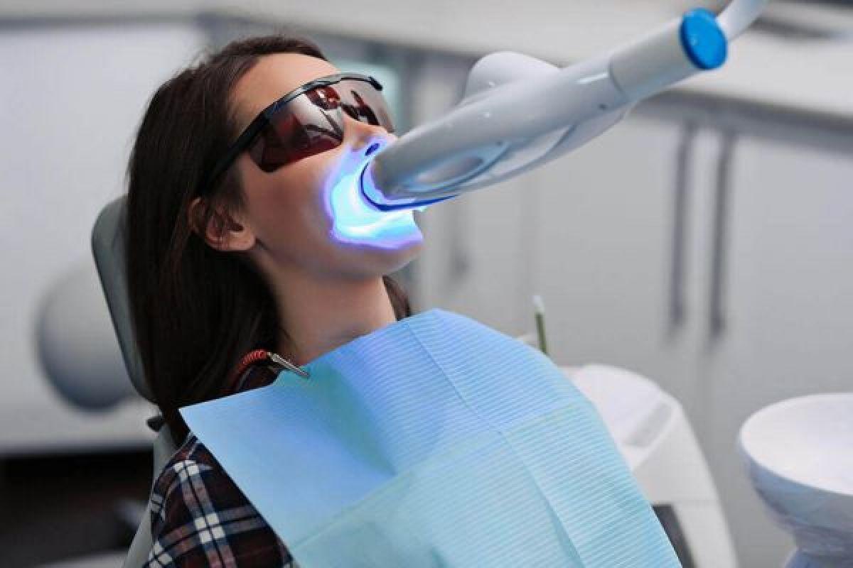 Blanchiment dentaire à Illzach (68) Par Karine - Estheca